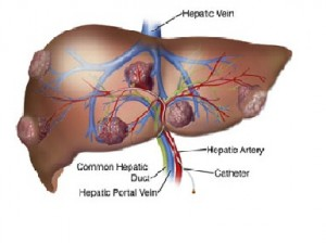 living donor liver transplant screening