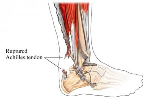 achilles tendonitis treatment types