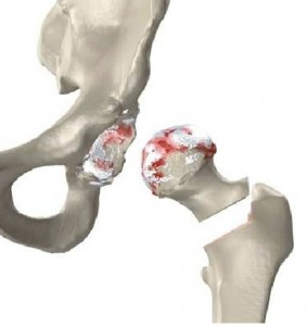total arthroplasty