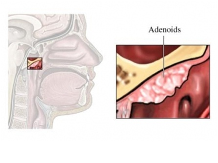 Adult adenoid problems