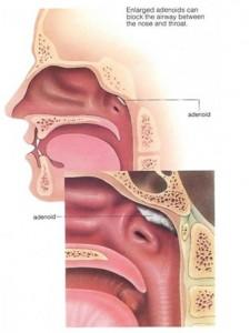 Adenoid diagnosis and Adenoidectomy