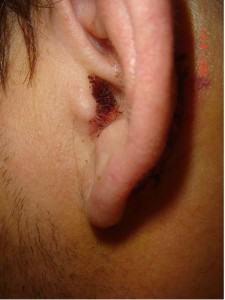 Ear Otoplasty Surgery Procedure