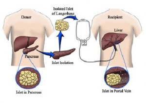 Pancreatic Transplant