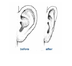 Prominent Ears - Otoplasty Surgery