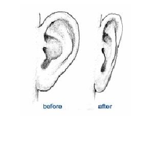 Prominent Ears - Otoplasty Surgery