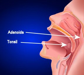 Tonsilitis Causes and Adenoid removal
