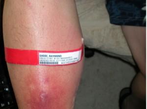 knee arthroplasty recovery