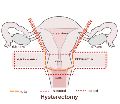 hysterectomy procedure