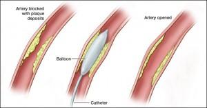 angioplasty procedure