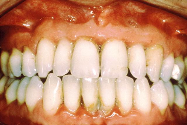 gingivitis symptoms