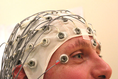 epilepsy treatment guidelines