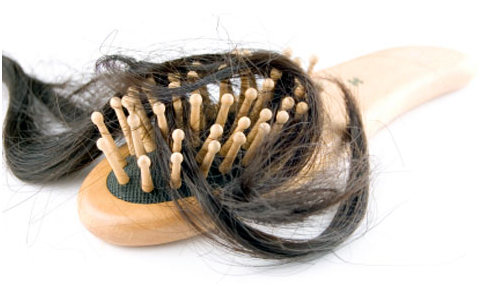 loss of hair in women