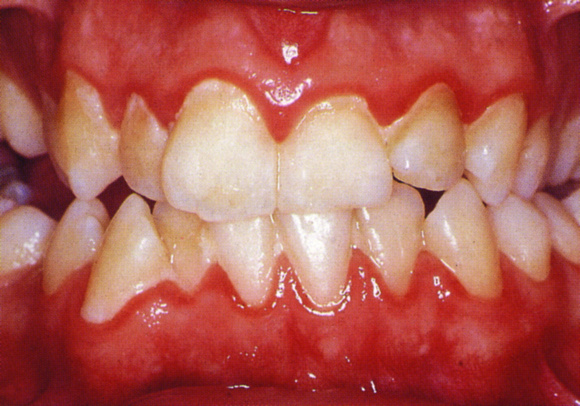 periodontal disease stages